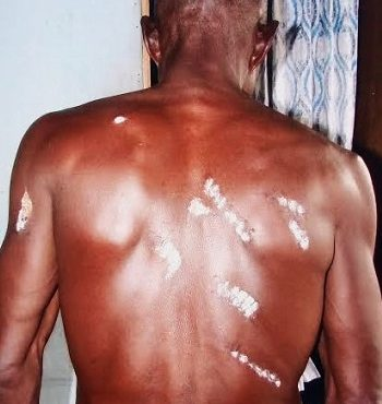 Police brutality leaves 67-year-old farmer partly 'paralysed'